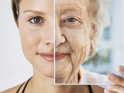 Ageing
